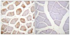 DAPK2 / DAP Kinase 2 Antibody - Immunohistochemistry analysis of paraffin-embedded human skeletal muscle, using DAPK2 (Phospho-Ser318) Antibody. The picture on the right is blocked with the phospho peptide.