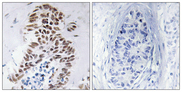 Immunohistochemistry analysis of paraffin-embedded human lung carcinoma tissue, using DAPK3 Antibody. The picture on the right is blocked with the synthesized peptide.