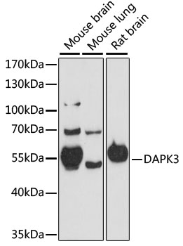 DAPK3 / ZIP Kinase Antibody - Western blot analysis of extracts of various cell lines, using DAPK3 antibody at 1:1000 dilution. The secondary antibody used was an HRP Goat Anti-Rabbit IgG (H+L) at 1:10000 dilution. Lysates were loaded 25ug per lane and 3% nonfat dry milk in TBST was used for blocking. An ECL Kit was used for detection and the exposure time was 90s.