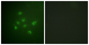 Immunofluorescence analysis of A549 cells, using DAPK3 (Phospho-Thr265) Antibody. The picture on the right is blocked with the phospho peptide.