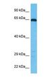 Western blot of DIDO1 Antibody with human Jurkat Whole Cell lysate.  This image was taken for the unconjugated form of this product. Other forms have not been tested.