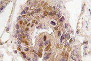 IHC of DATF1 / DIDO1 (S186) pAb in paraffin-embedded human colon carcinoma tissue.