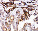 DCC antibody. IHC(P): Human Intestinal Cancer Tissue.