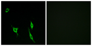 Immunofluorescence analysis of LOVO cells, using DCC Antibody. The picture on the right is blocked with the synthesized peptide.