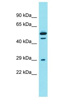 DCST2 Antibody - DCST2 antibody Western Blot of PANC1. Antibody dilution: 1 ug/ml.  This image was taken for the unconjugated form of this product. Other forms have not been tested.