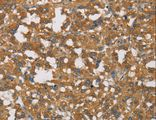 Immunohistochemistry of paraffin-embedded Human thyroid cancer using DCTN1 Polyclonal Antibody at dilution of 1:50.