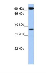 DCUN1D4 Antibody - Fetal heart lysate. Antibody concentration: 1.0 ug/ml. Gel concentration: 12%.  This image was taken for the unconjugated form of this product. Other forms have not been tested.
