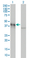 Western Blot analysis of DCX expression in transfected 293T cell line by DCX monoclonal antibody (M01), clone 1G12.Lane 1: DCX transfected lysate(41.4 KDa).Lane 2: Non-transfected lysate.