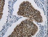 Immunohistochemistry of Human cervical cancer using DDB1 Polyclonal Antibody at dilution of 1:5.