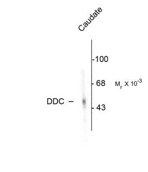 DDC / DOPA Decarboxylase Antibody - Western blot of rat adrenal medulla. As shown in the autoradiograph, the antibody is specific for the ~55k DDC protein.