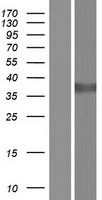 DDH / AKR1C1 Protein - Western validation with an anti-DDK antibody * L: Control HEK293 lysate R: Over-expression lysate