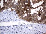 IHC of paraffin-embedded Adenocarcinoma of Human ovary tissue using anti-DDT mouse monoclonal antibody.