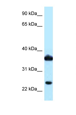 AKR1C3 antibody LS-C145932 Western blot of COL0205 Cell lysate. Antibody concentration 1 ug/ml.  This image was taken for the unconjugated form of this product. Other forms have not been tested.