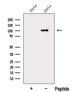 DDX10 Antibody - Western blot analysis of extracts of HeLa cells using DDX10 antibody. The lane on the left was treated with blocking peptide.
