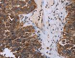 Immunohistochemistry of Human breast cancer using DDX11 Polyclonal Antibody at dilution of 1:30.