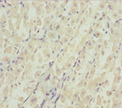 Immunohistochemistry of paraffin-embedded human gastric cancer at dilution 1:100
