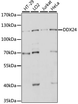 DDX24 Antibody - Western blot analysis of extracts of various cell lines, using DDX24 antibody at 1:1000 dilution. The secondary antibody used was an HRP Goat Anti-Rabbit IgG (H+L) at 1:10000 dilution. Lysates were loaded 25ug per lane and 3% nonfat dry milk in TBST was used for blocking. An ECL Kit was used for detection and the exposure time was 10s.