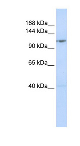 DDX46 Antibody - DDX46 antibody Western blot of MCF7 cell lysate. This image was taken for the unconjugated form of this product. Other forms have not been tested.