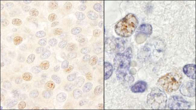 DDX46 Antibody - Detection of Human and Mouse DDX46 by Immunohistochemistry. Sample: FFPE section of human breast carcinoma (left) and mouse teratoma (right). Antibody: Affinity purified rabbit anti-DDX46 used at a dilution of 1:200 (1 ug/ml). Detection: DAB.