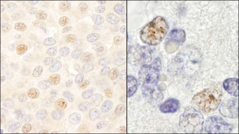 Detection of Human and Mouse DDX46 by Immunohistochemistry. Sample: FFPE section of human breast carcinoma (left) and mouse teratoma (right). Antibody: Affinity purified rabbit anti-DDX46 used at a dilution of 1:200 (1 ug/ml). Detection: DAB.