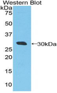 DDX58 / RIG-1 / RIG-I Antibody - Western blot of recombinant DDX58 / RIG-1 / RIG-I.  This image was taken for the unconjugated form of this product. Other forms have not been tested.