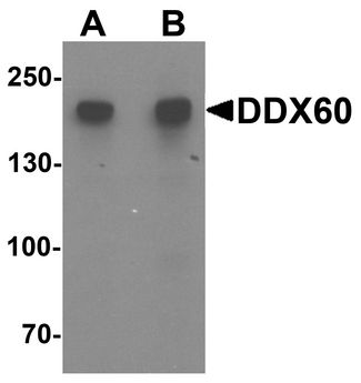 DDX60 Antibody - Western blot analysis of DDX60 in A20 cell lysate with DDX60 antibody at (A) 1 and (B) 2 ug/ml.