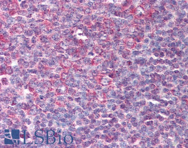 Anti-Beta Defensin 3 antibody IHC of human tonsil. Immunohistochemistry of formalin-fixed, paraffin-embedded tissue after heat-induced antigen retrieval. Antibody LS-B86 concentration 10 ug/ml.