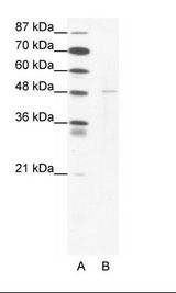 DEK Antibody - A: Marker, B: Jurkat Cell Lysate.  This image was taken for the unconjugated form of this product. Other forms have not been tested.