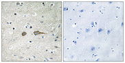 Immunohistochemistry analysis of paraffin-embedded human brain tissue, using MADD Antibody. The picture on the right is blocked with the synthesized peptide.