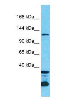 DENND3 Antibody - Western blot of DENND3 Antibody with human 786-0 Whole Cell lysate.  This image was taken for the unconjugated form of this product. Other forms have not been tested.