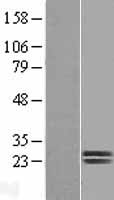 Dermatopontin / DPT Protein - Western validation with an anti-DDK antibody * L: Control HEK293 lysate R: Over-expression lysate