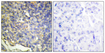 Immunohistochemistry analysis of paraffin-embedded human breast carcinoma tissue, using DFFA Antibody. The picture on the right is blocked with the synthesized peptide.