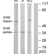Western blot analysis of lysates from Jurkat, 293, and HeLa cells, using DFFA Antibody. The lane on the right is blocked with the synthesized peptide.
