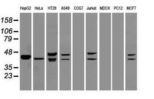 DFF45 antibody (5C4) at 1:5000 dilution + Hela cell lysate.