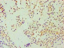 DFNA5 Antibody - Immunohistochemistry of paraffin-embedded human breast cancer using antibody at 1:100 dilution.
