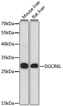 DGCR6L Antibody - Western blot analysis of extracts of various cell lines, using DGCR6L antibody at 1:1000 dilution. The secondary antibody used was an HRP Goat Anti-Rabbit IgG (H+L) at 1:10000 dilution. Lysates were loaded 25ug per lane and 3% nonfat dry milk in TBST was used for blocking. An ECL Kit was used for detection and the exposure time was 30s.