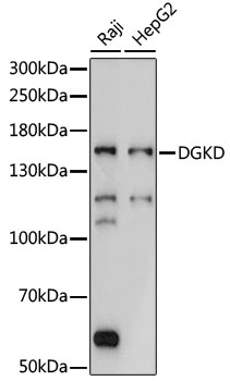 DGKD Antibody - Western blot analysis of extracts of various cell lines, using DGKD antibody at 1:1000 dilution. The secondary antibody used was an HRP Goat Anti-Rabbit IgG (H+L) at 1:10000 dilution. Lysates were loaded 25ug per lane and 3% nonfat dry milk in TBST was used for blocking. An ECL Kit was used for detection and the exposure time was 5s.
