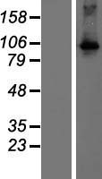 DGKQ Protein - Western validation with an anti-DDK antibody * L: Control HEK293 lysate R: Over-expression lysate
