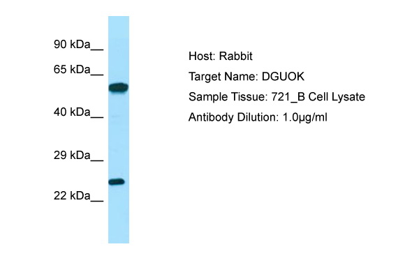 DGUOK / Deoxyguanosine Kinase Antibody -  This image was taken for the unconjugated form of this product. Other forms have not been tested.