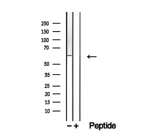 DHCR24 / Seladin-1 Antibody - Western blot analysis of extracts of mouse lung tissue using Seladin 1 antibody.