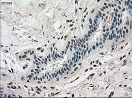 IHC of paraffin-embedded breast tissue using anti-DHFR mouse monoclonal antibody. (Dilution 1:50).