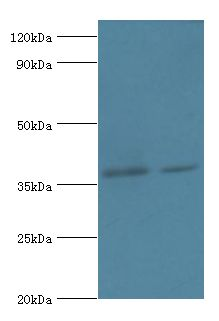 Western blot. All lanes: Dehydrogenase/reductase SDR family member 7 antibody at 2 ug/ml Lane 1:HepG2 whole cell lysate. Lane 2: MCF-7 whole cell lysate. Secondary antibody: Goat polyclonal to rabbit at 1:10000 dilution.  This image was taken for the unconjugated form of this product. Other forms have not been tested.