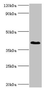 Western blot All lanes: DHRS7 antibody at 2µg/ml + MCF-7 whole cell lysate Secondary Goat polyclonal to rabbit IgG at 1/10000 dilution Predicted band size: 39, 33 kDa Observed band size: 39 kDa