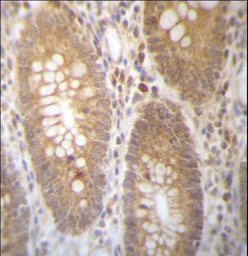 DHRS7B Antibody - DHRS7B Antibody immunohistochemistry of formalin-fixed and paraffin-embedded human colon tissue followed by peroxidase-conjugated secondary antibody and DAB staining.