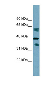 DHRS7B antibody LS-C107956 Western blot of HT1080 cell lysate.  This image was taken for the unconjugated form of this product. Other forms have not been tested.