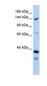 DHX37 antibody Western blot of MCF7 cell lysate. This image was taken for the unconjugated form of this product. Other forms have not been tested.