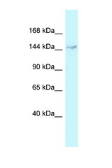 DHX38 antibody LS-C145855 Western blot of 3 Cell lysate. Antibody concentration 1 ug/ml.  This image was taken for the unconjugated form of this product. Other forms have not been tested.