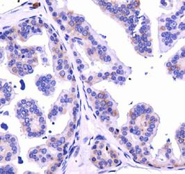 Dicer Antibody - IHC of DICER in mouse prostate.