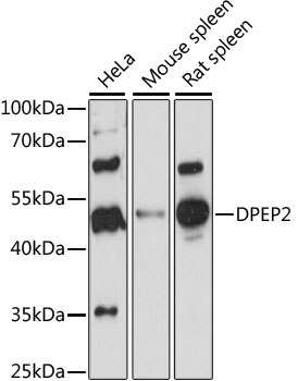 Dipeptidase 2 / DPEP2 Antibody - Western blot analysis of extracts of various cell lines, using DPEP2 antibody at 1:1000 dilution. The secondary antibody used was an HRP Goat Anti-Rabbit IgG (H+L) at 1:10000 dilution. Lysates were loaded 25ug per lane and 3% nonfat dry milk in TBST was used for blocking. An ECL Kit was used for detection and the exposure time was 90s.