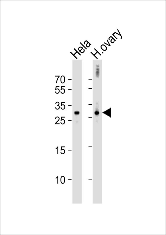 DIRAS3 / ARHI Antibody - Western blot of lysates from HeLa cell line and human ovary tissue lysate (from left to right), using DIRAS3 Antibody. Antibody was diluted at 1:1000 at each lane. A goat anti-rabbit IgG H&L (HRP) at 1:10000 dilution was used as the secondary antibody. Lysates at 35ug per lane.